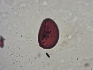 Pollen from the plant Genus Woodwardia.