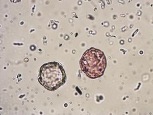 Pollen from the plant Species Ulmus glabra.