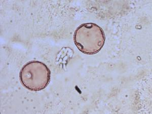 Pollen from the plant Species Campanula glomerata.