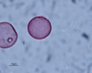 Pollen from the plant Genus Milium.