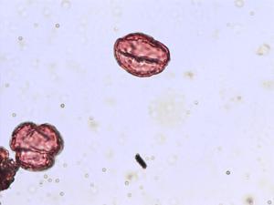 Pollen from the plant Species Viola palustris.