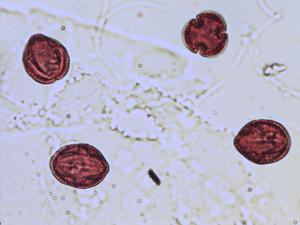 Pollen from the plant Genus Mercurialis.
