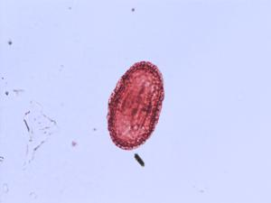 Pollen from the plant Genus Heracleum.