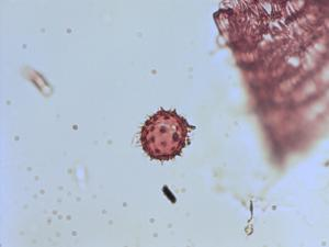 Pollen from the plant Genus Neomirandea.