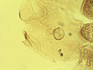Pollen from the plant Genus Calceolaria.