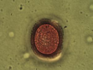 Pollen from the plant Genus Eucrosia.