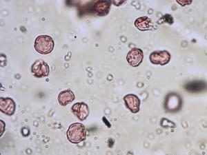 Pollen from the plant Genus Parietaria.