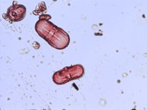 Pollen from the plant Genus Aegopodium.