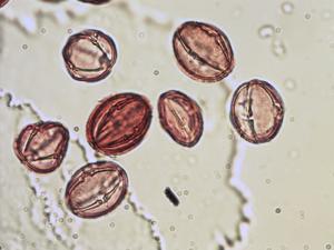 Pollen from the plant Species Gentiana lutea.