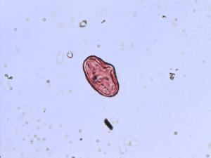 Pollen from the plant Genus Ligusticum.
