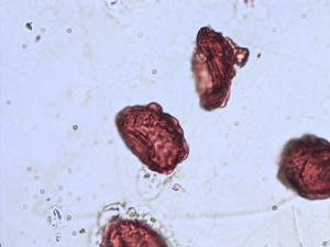 Pollen from the plant Genus Gymnocarpium.