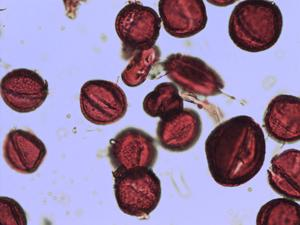 Pollen from the plant Species Saxifraga rotundifolia.