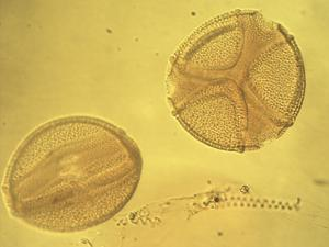 Pollen from the plant Genus Caesalpinia.