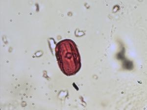 Pollen from the plant Species Lathyrus pratensis.