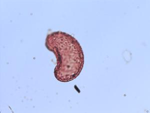 Pollen from the plant Species Polypodium sanctae-rosae.