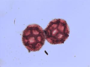 Pollen from the plant Species Sonchus oleraceus.