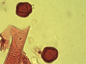 Pollen from the plant Genus Antrocaryon.