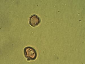 Pollen from the plant Genus Orostachys.