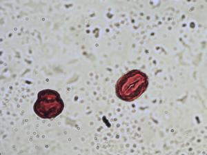 Pollen from the plant Species Trifolium repens.