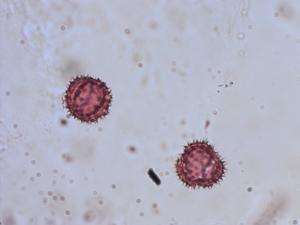 Pollen from the plant Species Erigeron uniflorus.
