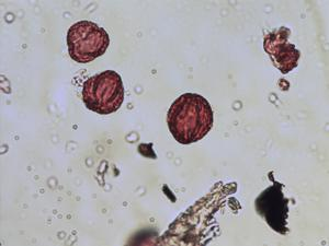 Pollen from the plant Species Saxifraga cotyledon.