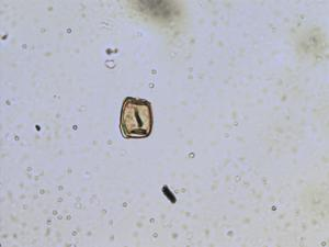 Pollen from the plant Genus Myosurus.