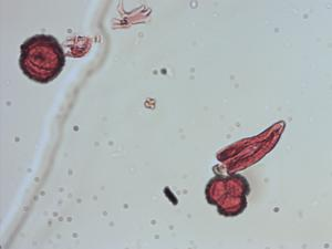 Pollen from the plant Genus Decachaeta.