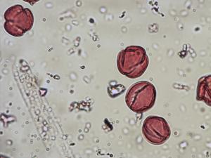 Pollen from the plant Species Genista pilosa.