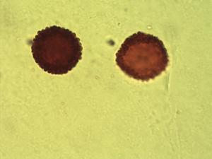 Pollen from the plant Genus Erythrodontium.