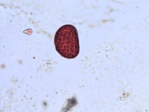 Pollen from the plant Species Asplenium scolopendrium.