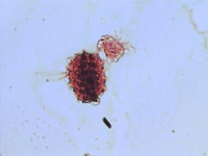 Pollen from the plant Genus Psacalium.