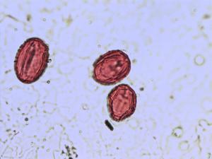 Pollen from the plant Species Oxytropis campestris.