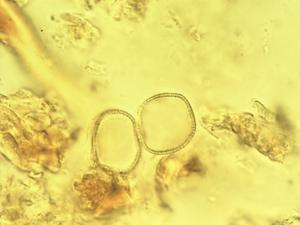 Pollen from the plant Genus Coelocaryon.