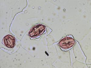 Pollen from the plant Species Geum montanum.