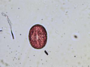 Pollen from the plant Species Trifolium pratense.