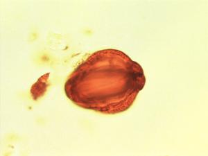 Pollen from the plant Genus Petersianthus.