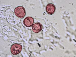 Pollen from the plant Species Rumex acetosa.