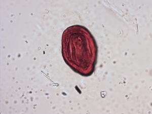 Pollen from the plant Species Teucrium fruticans.
