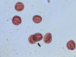 Pollen from the plant Genus Fleischmannia.