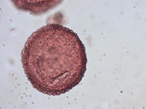 Pollen from the plant Species Tsuga heterophylla.