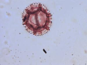 Pollen from the plant Genus Scolymus.