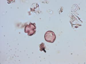 Pollen from the plant Species Rubus adenotrichus.