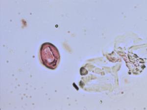 Pollen from the plant Species Globularia vulgaris.