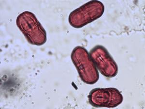 Pollen from the plant Species Sanicula europaea.