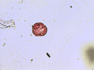 Pollen from the plant Genus Cicendia.