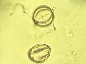 Pollen from the plant Genus Grabowskia.