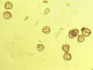 Pollen from the plant Genus Sclerocroton.