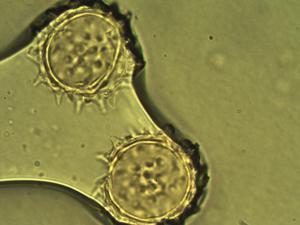 Pollen from the plant Species Scalesia aspera.