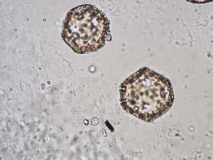 Pollen from the plant Species Stellaria holostea.