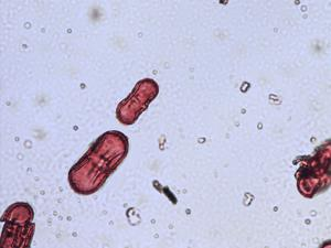 Pollen from the plant Genus Chaerophyllum.